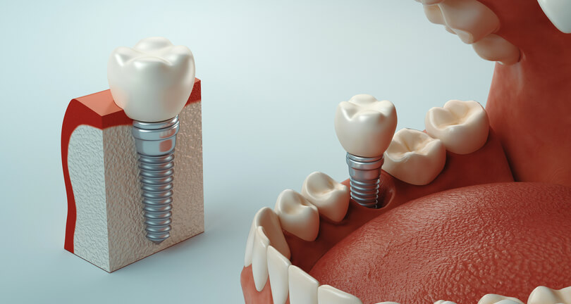 Dental Implant model of a single implant at beach grove dental tsawwassen