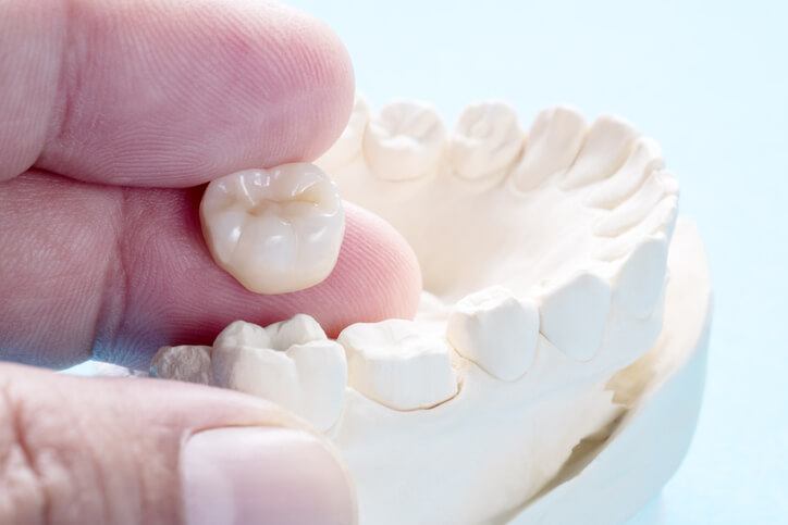 dental crown and a mold of lower jaw at beach grove dental tsawwassen