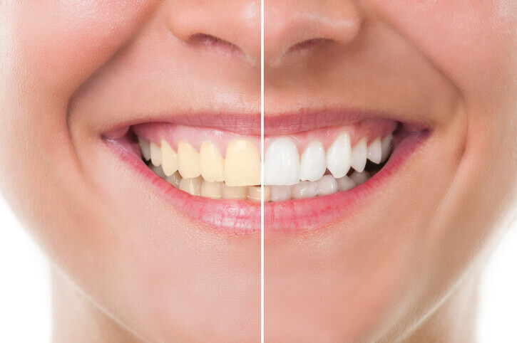 teeth whitening before and after image - beach grove dental tsawwassen