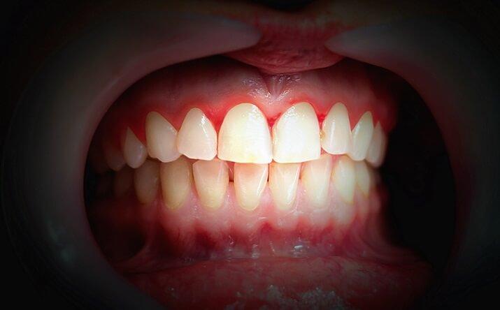 signs of periodontal or gum disease in teeth